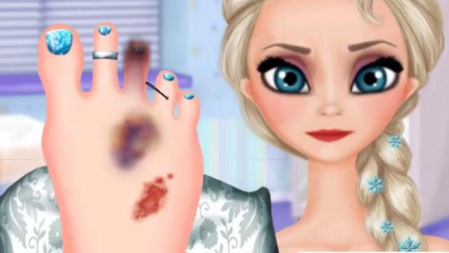 elsa foot injured free mobile game online